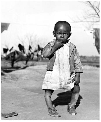 This child's bowed legs are a symptom of rickets, a disease resulting from vitamin-D deficiency. Because their skin absorbs less sunlight, dark-skinned people need more sun exposure to synthesize the recommended daily amount of vitamin-D. [photograph by Marion Post Wolcott. Corbis. Reproduced by permission.]